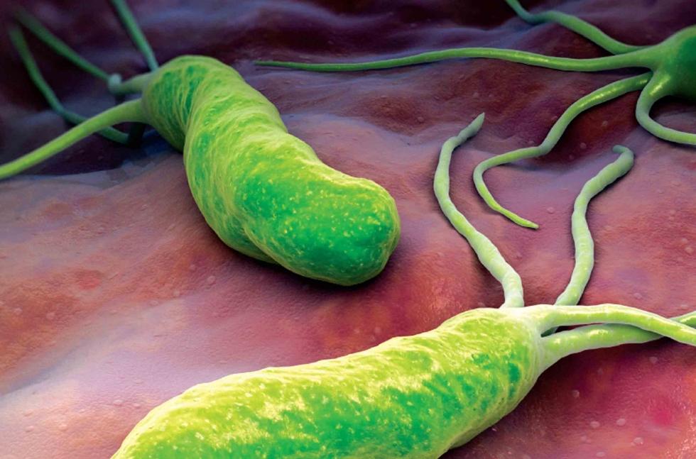 Vi khuẩn HP - thủ phạm chính gây viêm loét dạ dày