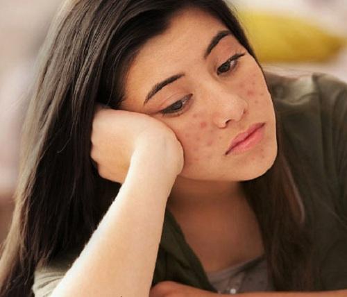 Nóng gan ảnh hưởng đến sức khỏe, làn da của người bệnh