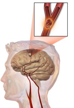 Não bị phù nề