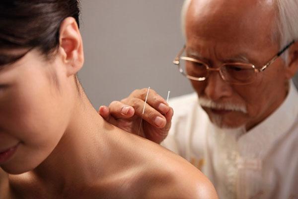người bệnh có thể điều trị bằng cách châm cứu đau vai gáy