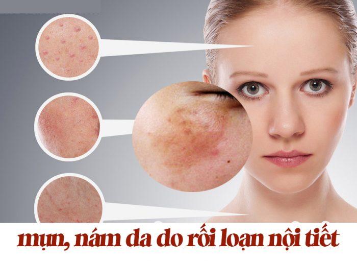 Rối loạn nội tiết tố da - Ảnh hưởng nguy hiểm của rối loạn nội tiết tố đến làn da