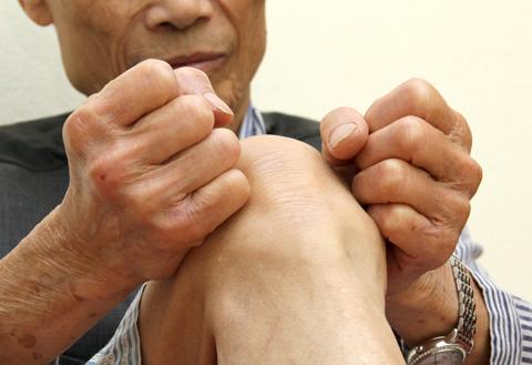Viêm bao hoạt dịch khớp là căn bệnh nguy hiểm