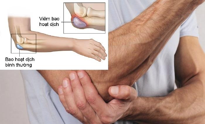 Viêm bao hoạt dịch khớp khuỷu tay